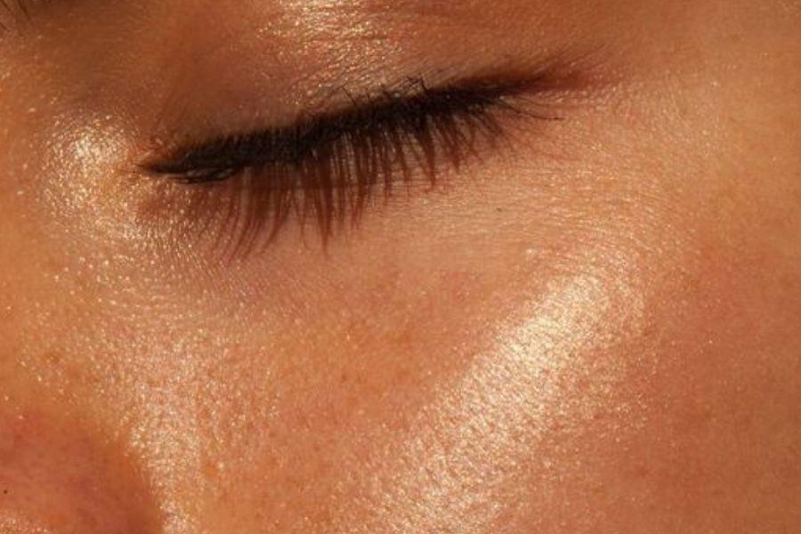 Cicatrices acné: Cómo desaparecerlas y sus principales detonantes