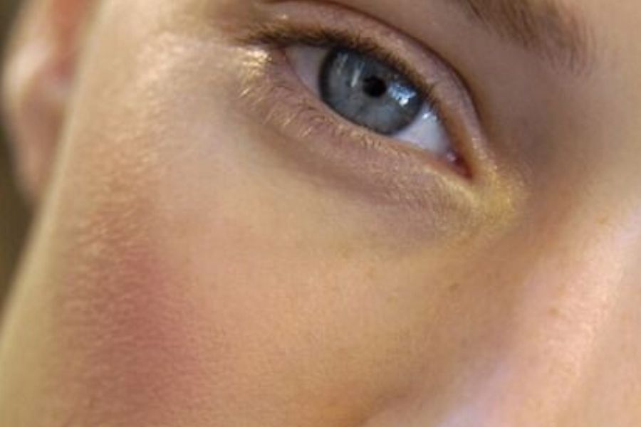 Tratamientos faciales con láser: ¿Cuál es el adecuado para tu tratamiento?
