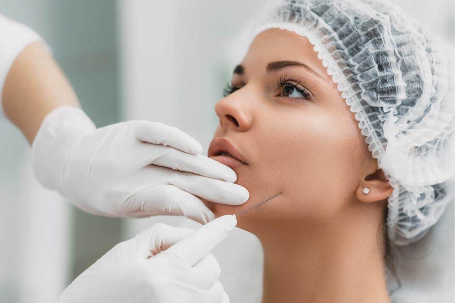 Hilos tensores faciales: qué esperar después de este tratamiento