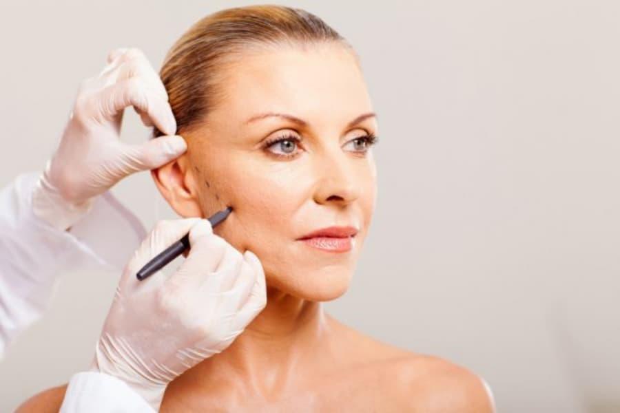 Los tratamientos faciales más efectivos de lifting sin cirugía