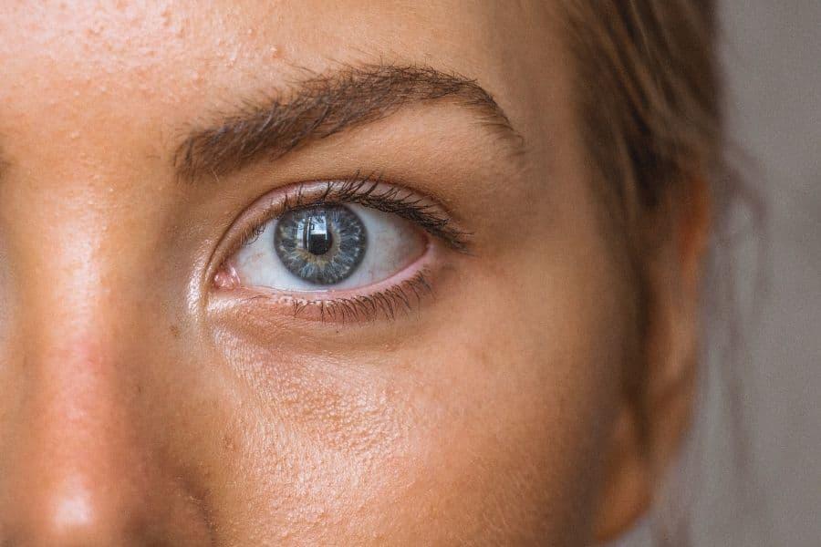 El tratamiento facial que necesitas para acabar con el molesto acné